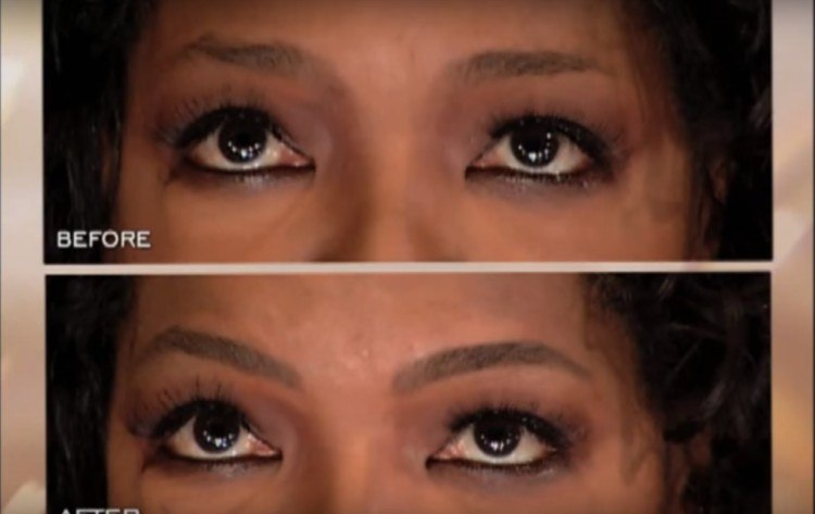 Oprah's brows before and after they've been shaped.
