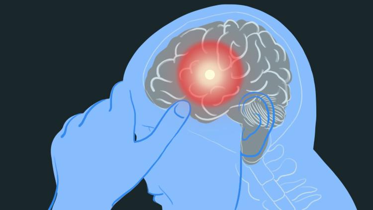 Stroke warning sign - headache
