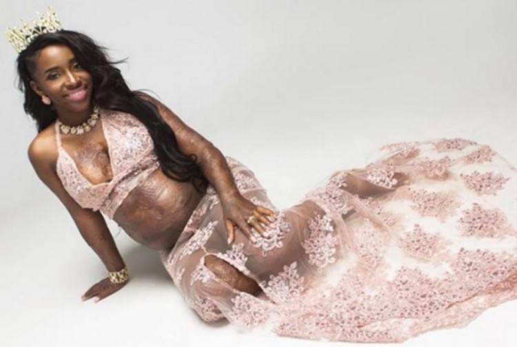 Image of burn survivor Andrea Grant.