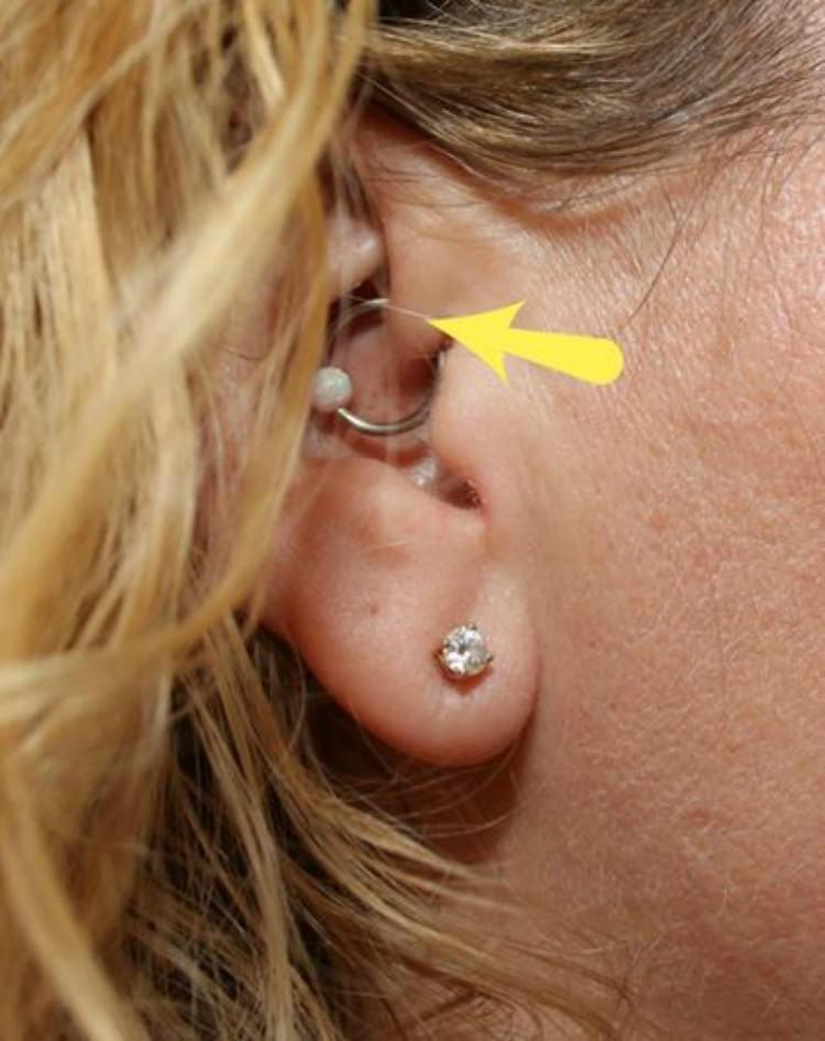 Nicole Bandes' daith piercing.