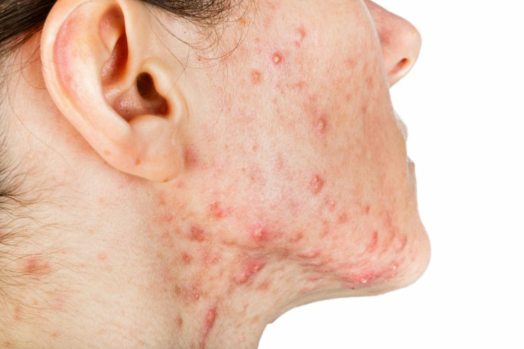 Image of woman with acne.