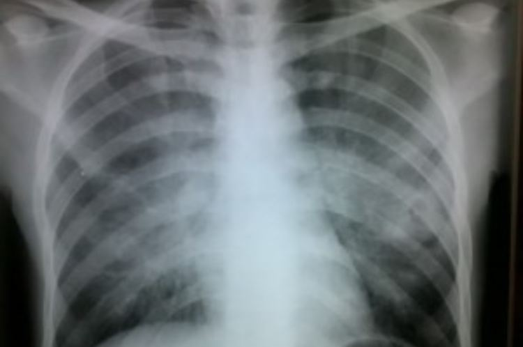 lung cancer chest