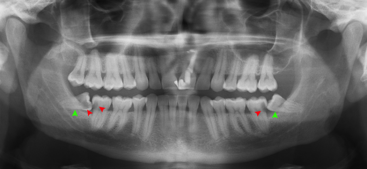 Image of impacted wisdom teeth.