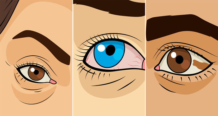 Graphic of three different symptoms of the eye.