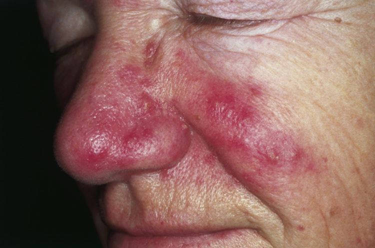 Rosacea on the face.