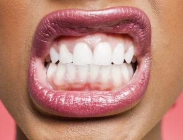 Image of woman showing teeth.