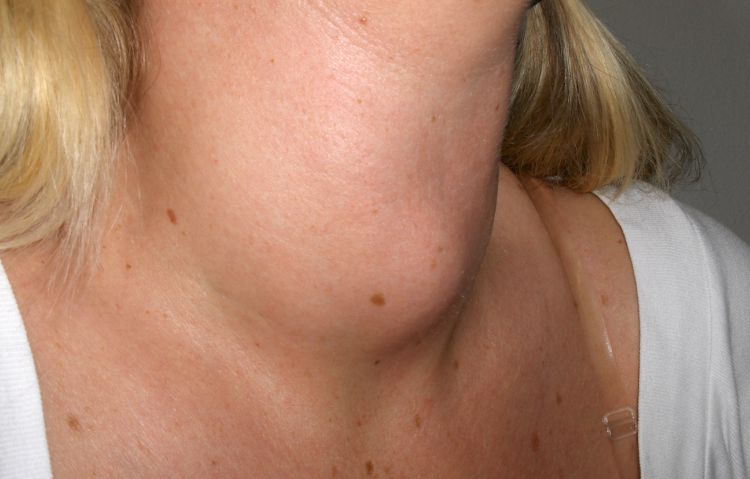 Image of a goiter.