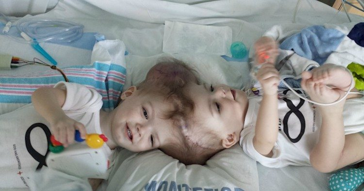 Conjoined twins before surgery with separators
