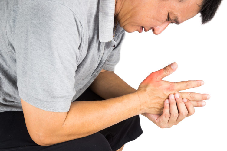 Image of man with swollen hands in pain