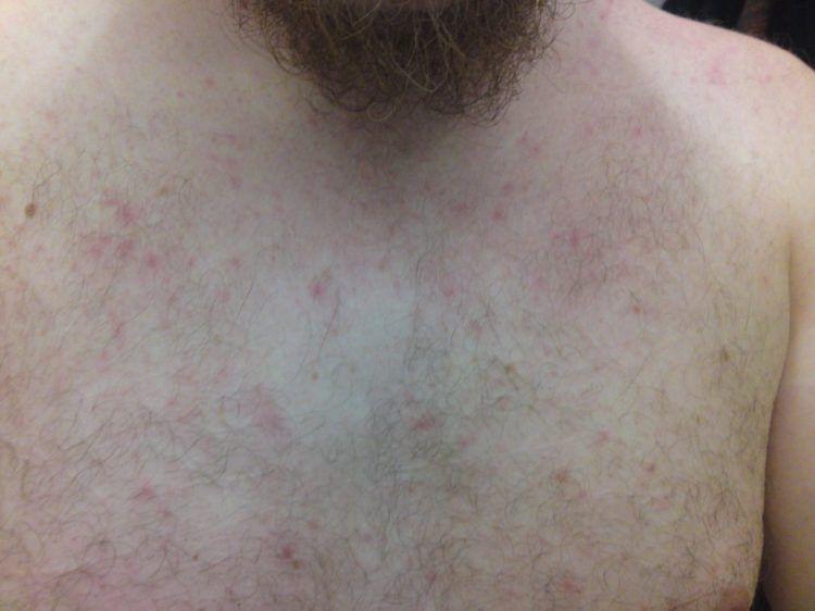 Heat rash on man's chest.