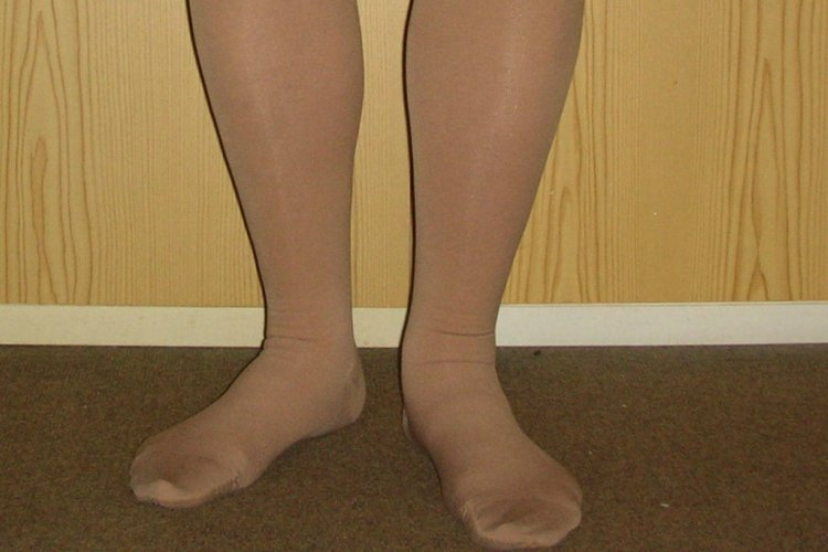 CompressionStockings
