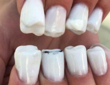 Image of teeth nails