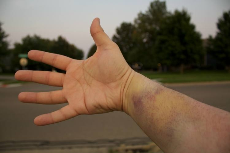 Fade bruises with Epsom salt