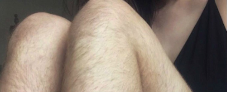 Image of unshaved legs.
