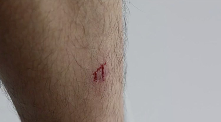 Diabetic cut bleeding.