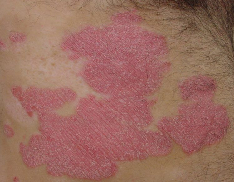 Outbreak of psoriasis.