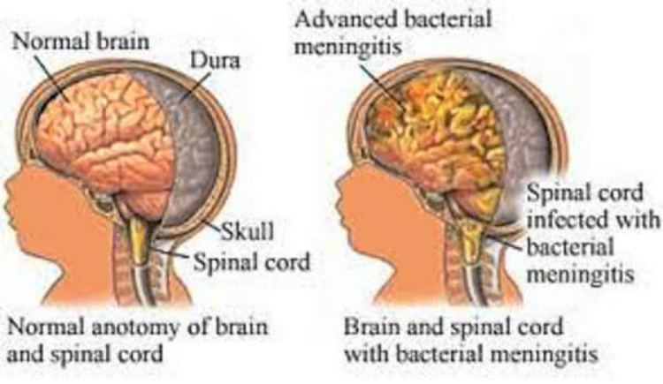 Normal infant brain compared with one with listeria meningitis