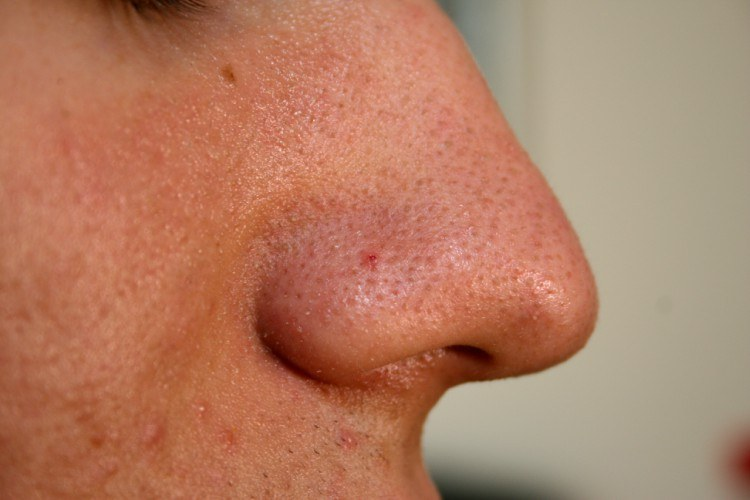 Nose with blackheads on it.