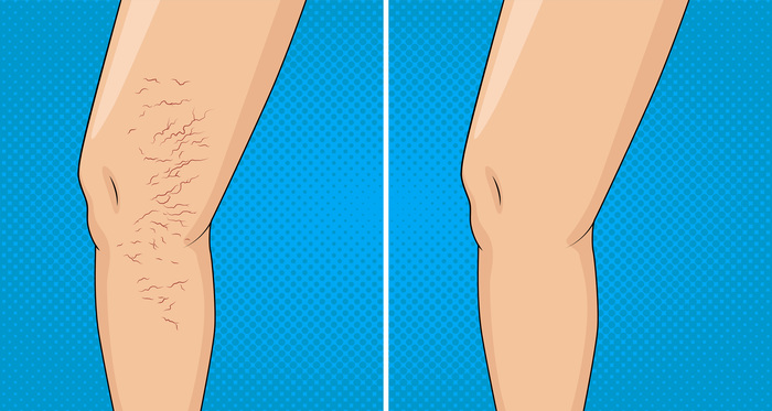 Graphic of varicose veins, before and after.