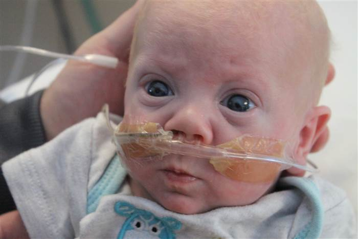 Premature baby with tubes.
