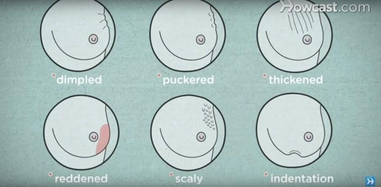 Breast cancer symptoms on skin.