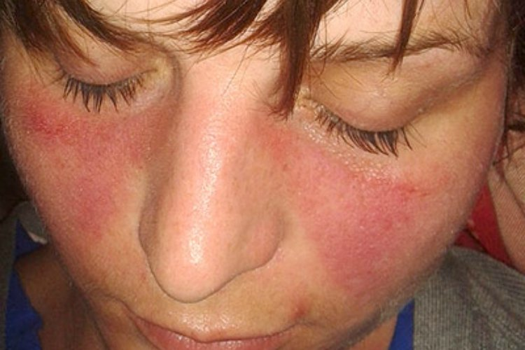 Butterfly or malar rash can be sign of lupus