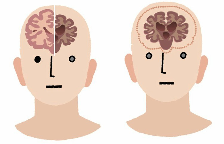 Drawing of person with damaged and healthy brain.
