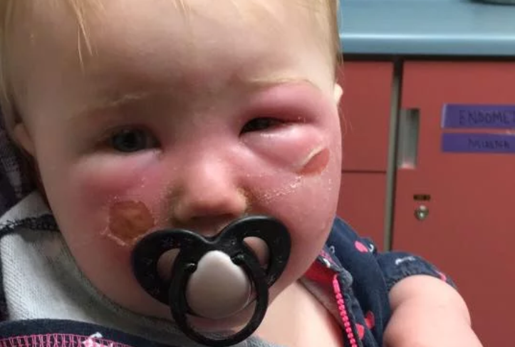 Image of baby with bad burns on cheeks.
