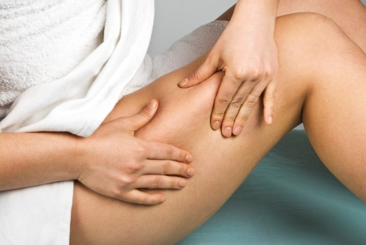 Woman worried about cellulite on her leg.
