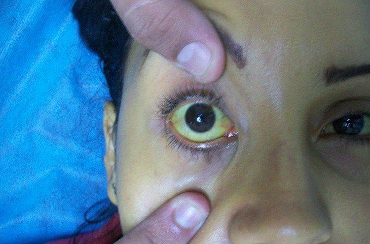 Image of jaundice in the eye.