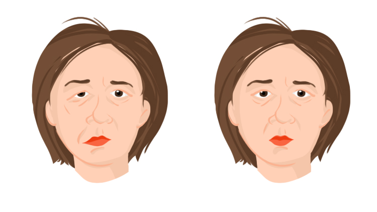 Stroke warning signs - drooping face