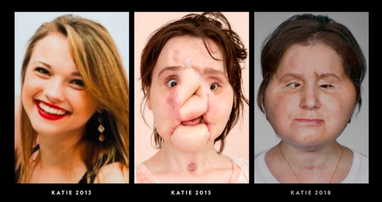 Image of Katie before and after face transplant surgery