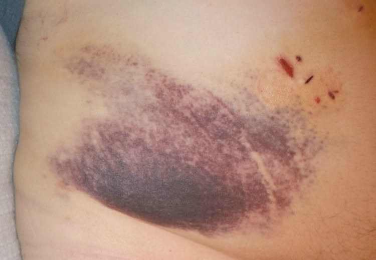 vicks for bruise