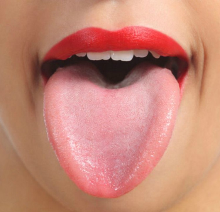 An example of a healthy tongue.
