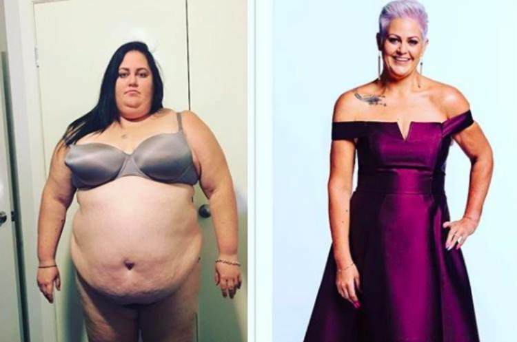 side by side before and after weight loss