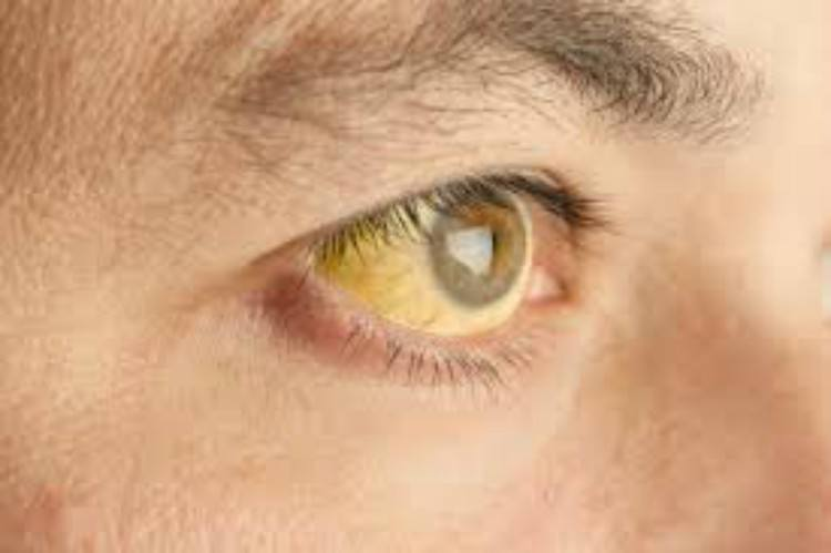 Man with yellowing eyes.