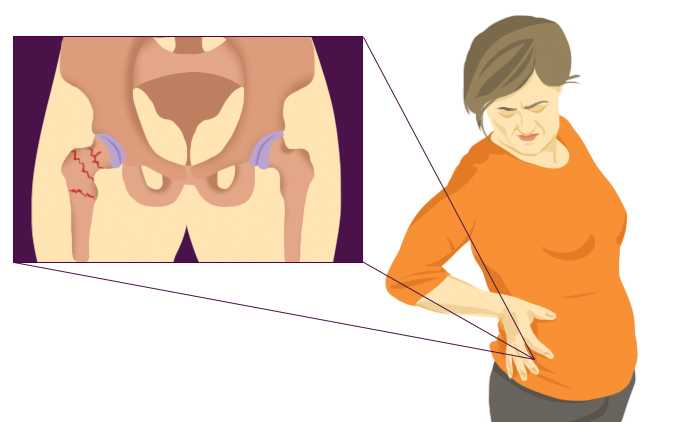 Graphic of woman in pain
