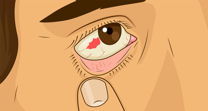 Graphic of blood spot in eyeball.