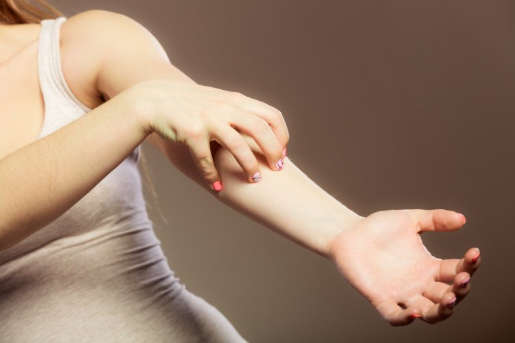 Health problem. Young woman scratching her itchy arm with allergy rash