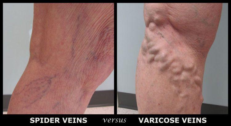 Spider veins versus varicose veins.