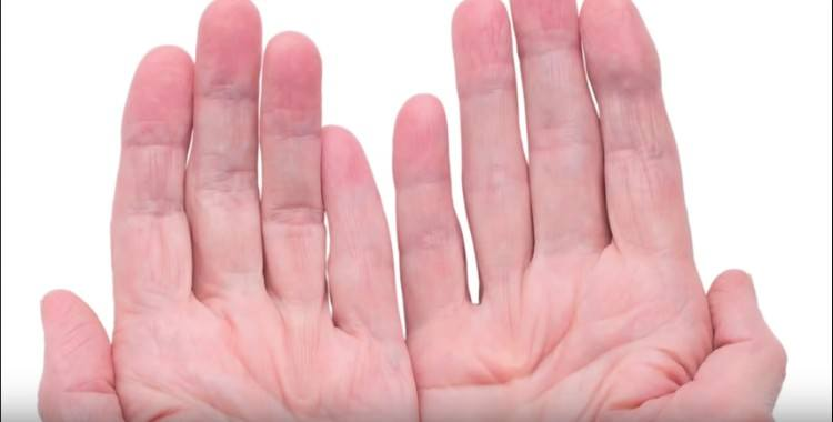 wrinkly hands against white background