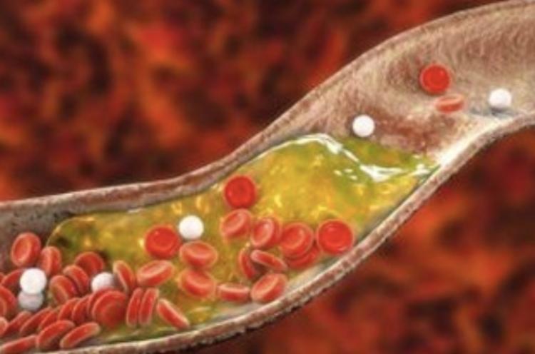 cholesterol pic