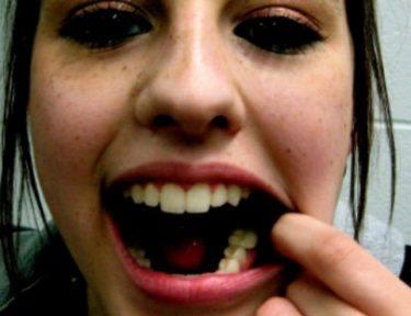 woman shows off teeth