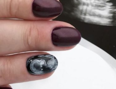 woman models ultrasound nails