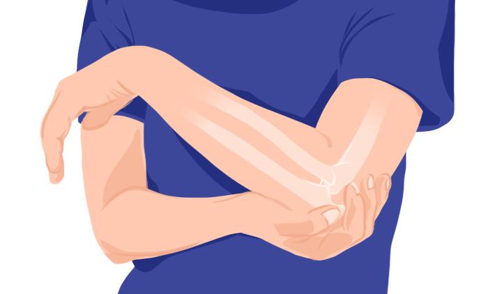 Graphic of bone pain