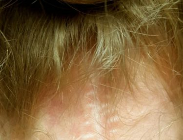 Image of girl's scar