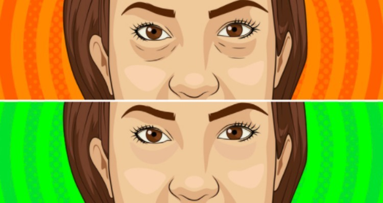before and after under eye bag illustration