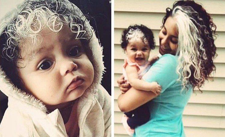 parent child poliosis