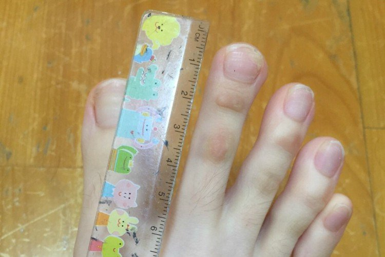 Image of toe being measured.