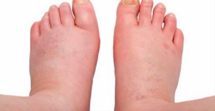Feet Swelling